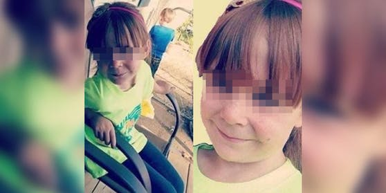 Mit nur 18 Kilo kam das Mädchen ins Krankenhaus.