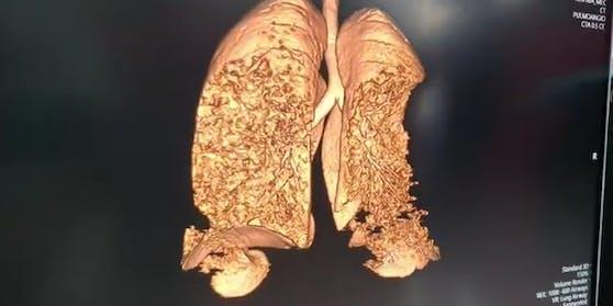 Die Lunge eines 27-jährigen, an Corona erkrankten Mannes.