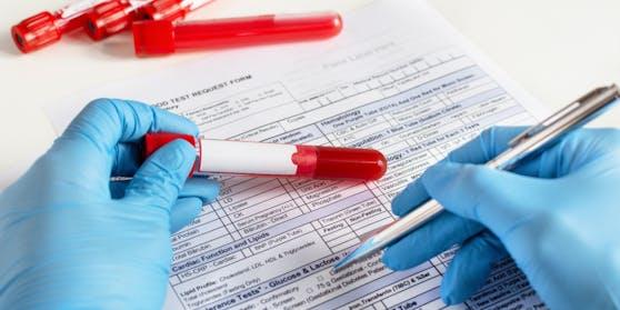 Wegen eines Fehlers war der PCR-Test eines Wieners87 Stunden gültig.