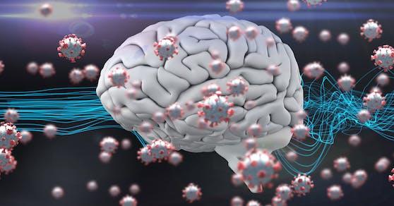 Schlaganfälle oder Hirnhautentzündungen können Folgeschäden einer Covid-19-Infektion sein.