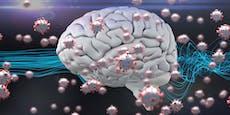 Diese Folgen hat eine Covid-19-Infektion für unser Hirn