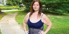 29-jährige Frau nahm 140 Kilogramm ab