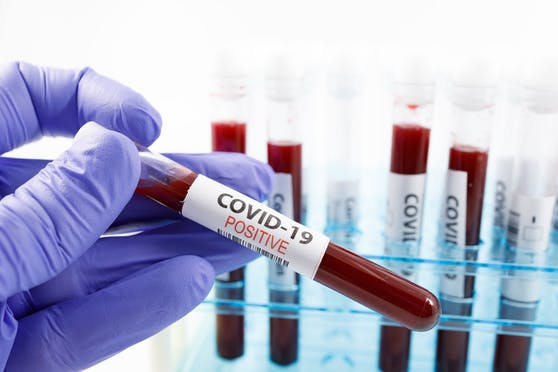 Die WHO hat beschlossen, die Corona-Mutationen neu zu benennen.