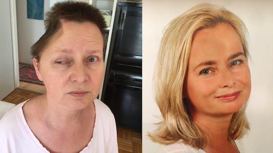 Andrea Golda (52) vor und nach ihrem Unfall