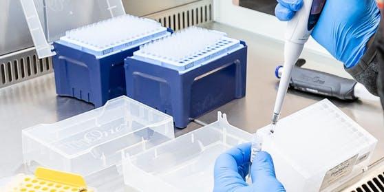 Ein Corona-Labortest in Österreich (Symbolbild)