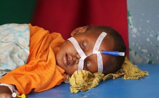 Save the Children fordert, globale Konflikte zu beenden: Ein Kind in einem Spital in Somalia.