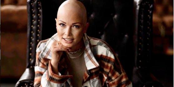 Janin Baumann zeigt ihre Glatze mit Stolz.