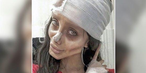 "Influencerin Sahar Tabar, alias """"Zombie-Angelina-Jolie''"