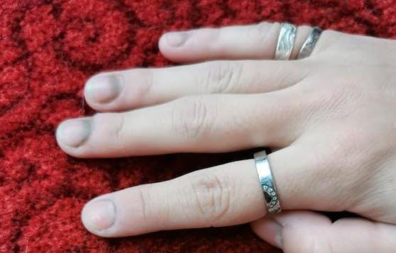Die Hände der 17-Jährigen vertrugen sieben Stunden in Latexhandschuhen nicht.