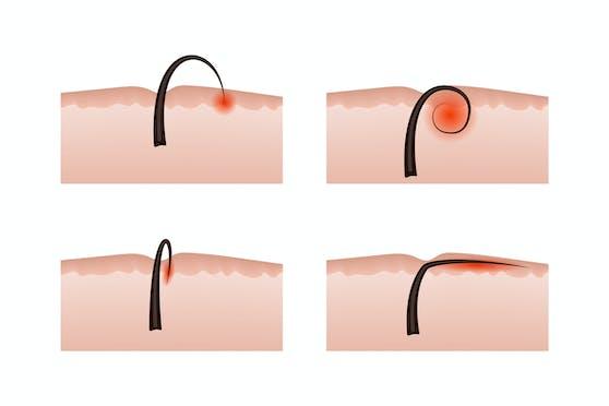 Eingewachsene Haare können in unterschiedlichen Formen auftreten.