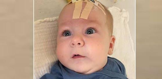 Die vier Monate alte Anastasia bekam nun als erstes Kind Österreichs eine Infusion davon verabreicht.