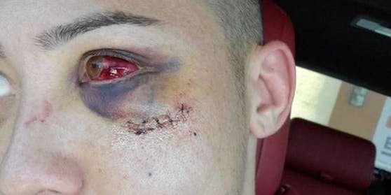 Boston Salmon schockiert seine Fans mit seinem verletzten Auge.