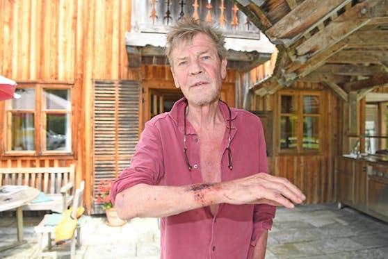 Prinz Ernst August vor seinem Jagdschloss im Salzkammergut: Im Juli bereits kam es zu einem Polizeieinsatz. Hier zeigt der Welfenprinz seine Verletzung.