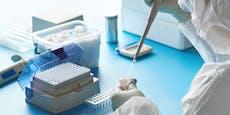 Laut Studie hat nicht jeder Infizierte Antikörper