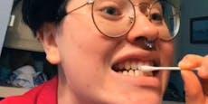 Ruinierte Zähne und Co. durch TikTok-Beauty-Trends