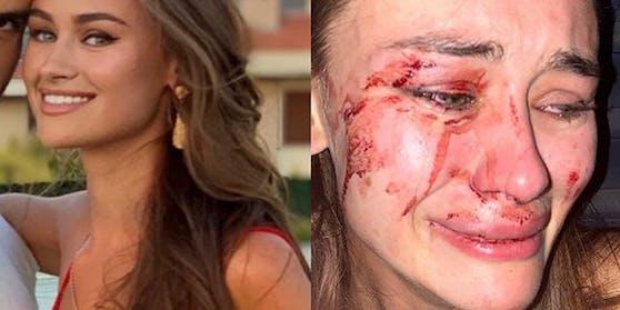 Das Model Daria Kyryliuk vor und nach der Tat