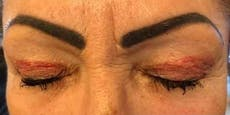 Permanent-Make-up total verpfuscht – jetzt klagt Kundin