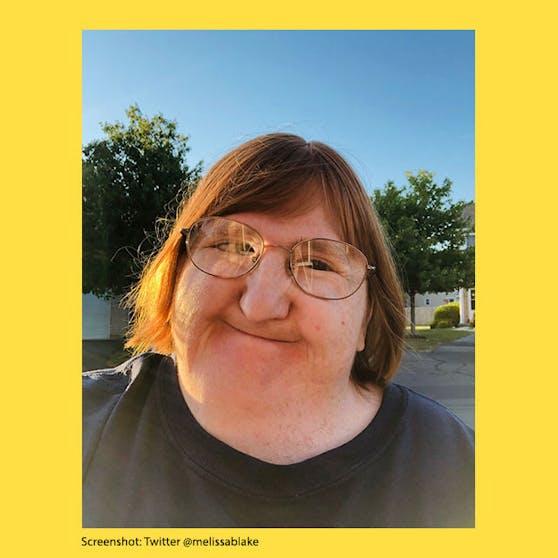 """Die Journalistin Melissa Blake erfuhr von Freunden, dass ihr Gesicht für die """"New Teacher Challenge"""" auf TikTok verwendet wurde."""