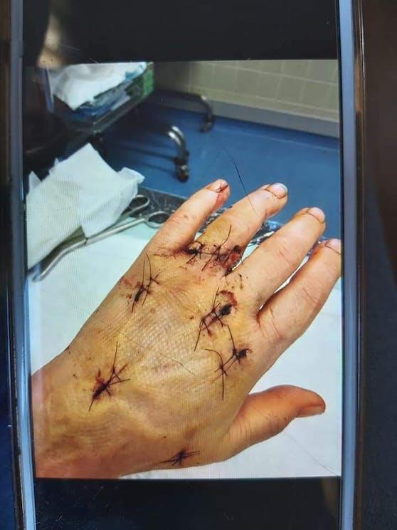 Mehrere Operationen hat die Frau schon hinter sich.