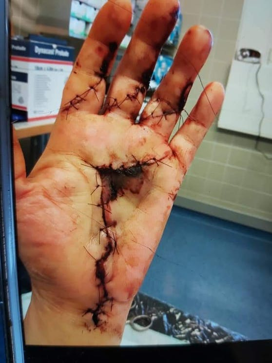 Eine Leobersdorferin wurde von einem freilaufenden Hund gebissen.
