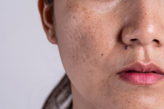Pigmentflecken - oder auch Altersflecken genannt - haben unterschiedliche Ursachen.