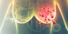 Bienengift zerstört Brustkrebszellen