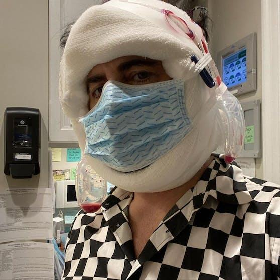 Top-Designer Marc Jacobs hat sich bei einem der berühmtesten Chirurgen der USA einem Facelift unterzogen