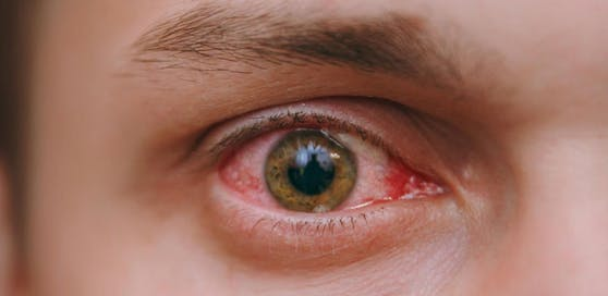 Bei der Augengrippe handelt es sich um eine Bindehautentzündung.