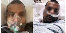 Mann (34) spottet über Impfung, dann stirbt er an Corona
