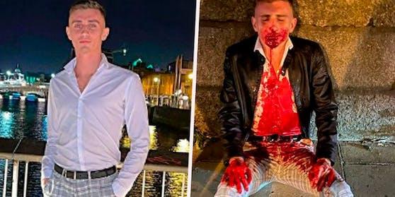 Jack Woolley posiert beim Ausgehen, sitzt zwei Minuten später blutüberströmt auf der Straße.
