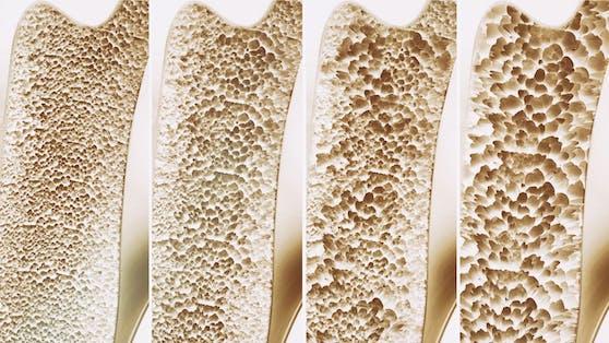 Bei Osteoporose verliert der Knochen an Masse und Festigkeit. Dadurch bricht er leichter.