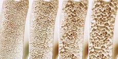 Osteoporose ist längst keine Frauenkrankheit mehr