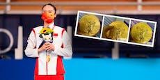 Bei Olympia-Goldmedaille löst sich die Schicht ab