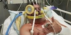 Bodybuilder lehnte  die Covid-Impfung ab – tot