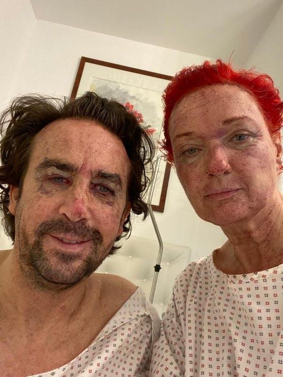 Star-Coiffeur Josef Winkler und Ehefrau Karin unterzogen sich einer Verjüngungskur.