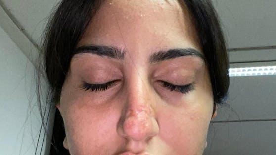 Eines der Opfer der falschen Beauty-Ärztin.