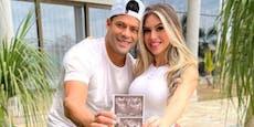 Brasilien-Star Hulk erwartet Kind von Nichte seiner Ex