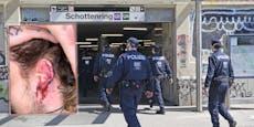 Jetzt spricht der Wiener, der sein Ohr in U-Bahn verlor