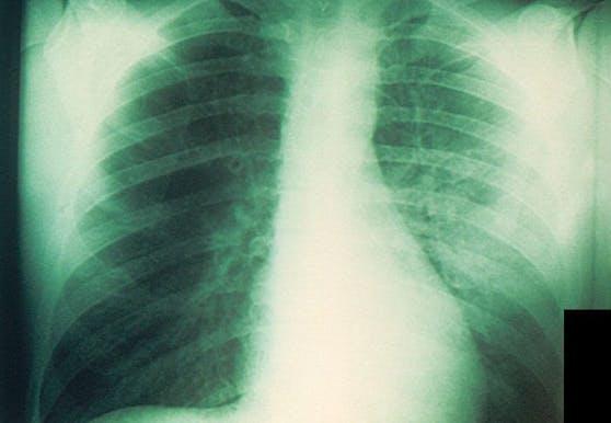 Röntgenbild einer mit Pest infizierten Lunge. (Symbolbild)