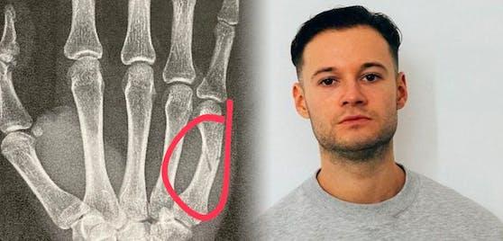 Youtuber inscope 21 neben dem Röntgenbild seiner gebrochenen Hand.