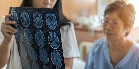 Schwindel, Verwirrung, Gedächtnisverlust und Gleichgültigkeit – es gibt mehrere Hinweise darauf, dass das Coronavirus Sars-CoV-2 auch dem Gehirn zusetzt.