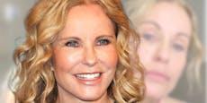 """RTL-Moderatorin Katja Burkard zeigt sich """"oben ohne"""""""