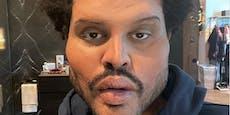 The Weeknd schockt Fans mit neuem Gesicht