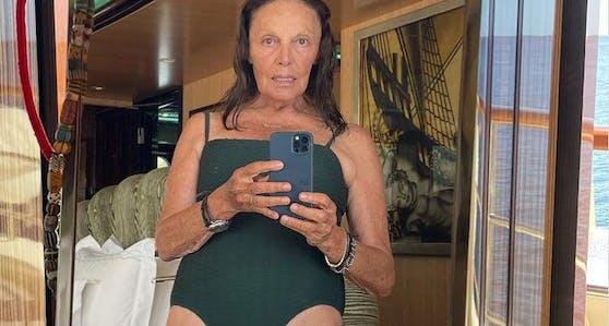 Diane von Furstenberg hält nichts von Schönheits-OPs und sagt das auch offen auf Instagram.
