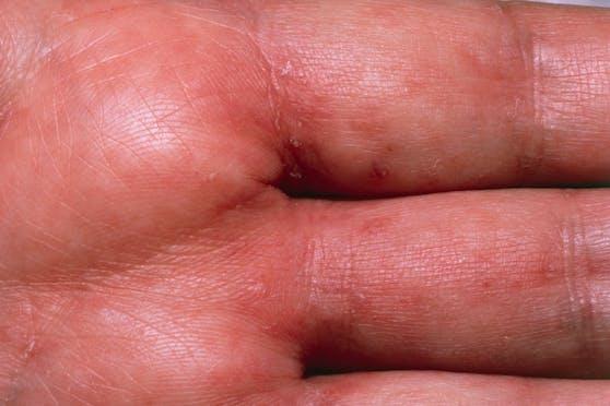 Krätzebefall einer menschlichen Hand. Gut sichtbar: Die Tunnel in der Haut.