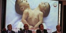 25 Ärzte trennen siamesische Zwillinge in Mega-OP