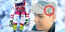 """Schmidi"": Heute Ski-Comeback mit Spitals-Glücksklee"
