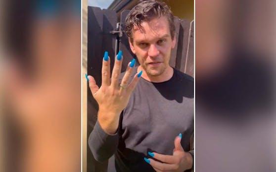 Voller Einsatz: Für das Video verpasste sich Robin sogar Fake Nails.