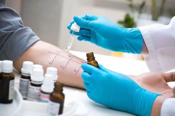 Mit dem Prick-Test können manche Allergien schnell abgeklärt werden.