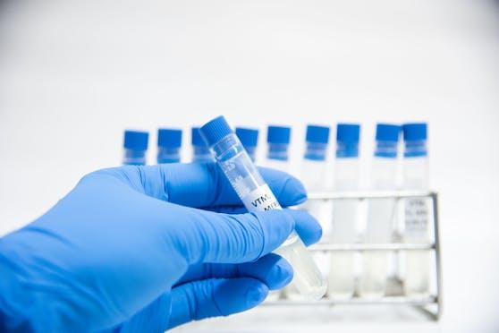 Das lösliche APN01 soll dasSARS-CoV-2-Virus bereits am Einfallstor blockieren und den entzündlichen Reaktionen in der Lunge entgegengewirkt.
